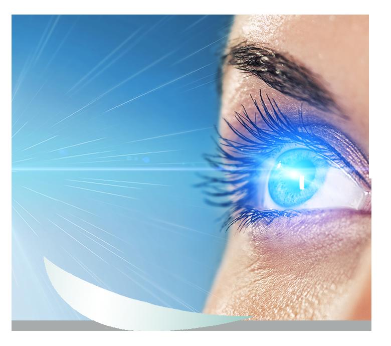 lasermyopia_shape