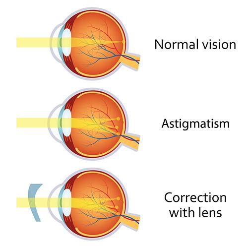 astigmatism_pic