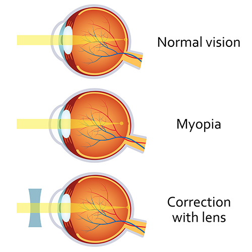 myopia_pic